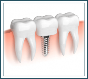 dental implants blog